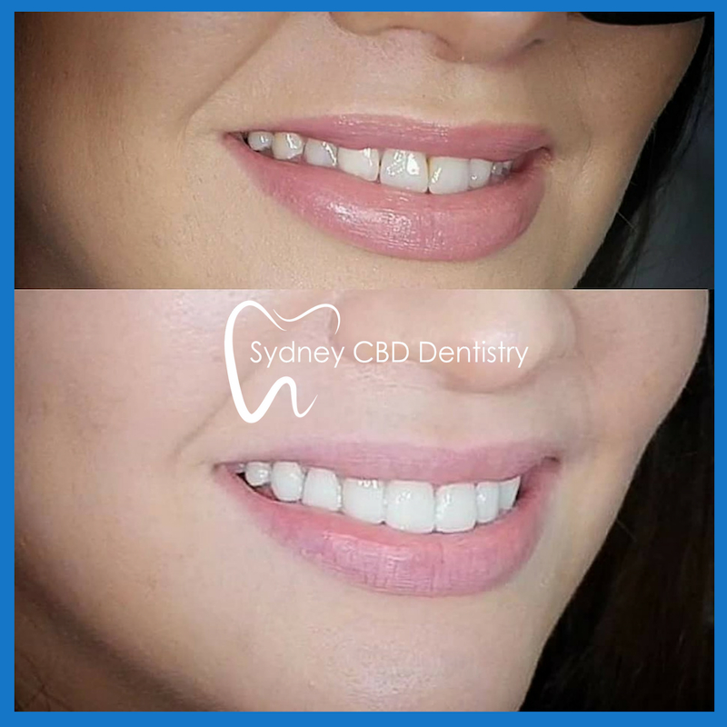 Best veneers in Sydney