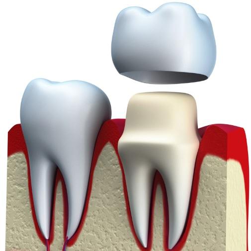 Dental Crown in Sydney