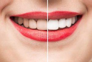 Teeth Whitening Special in Sydney