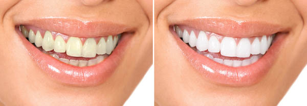 We are the best dentistry for teeth whitening in Sydney.