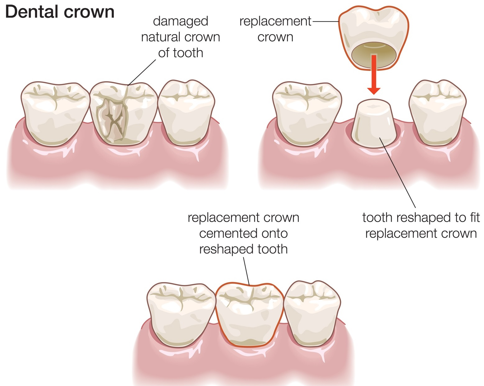 We are the best dentistry for dental crowns in Sydney CBD.