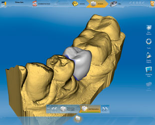 We are the best at dental implant design.