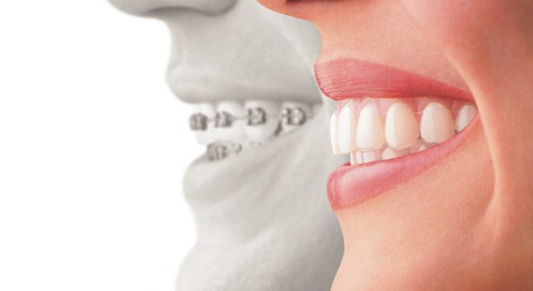 We are the experts of Invisalign in Sydney.