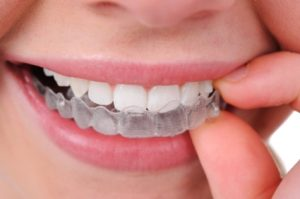 We have the best dentist when it comes to Invisalign.