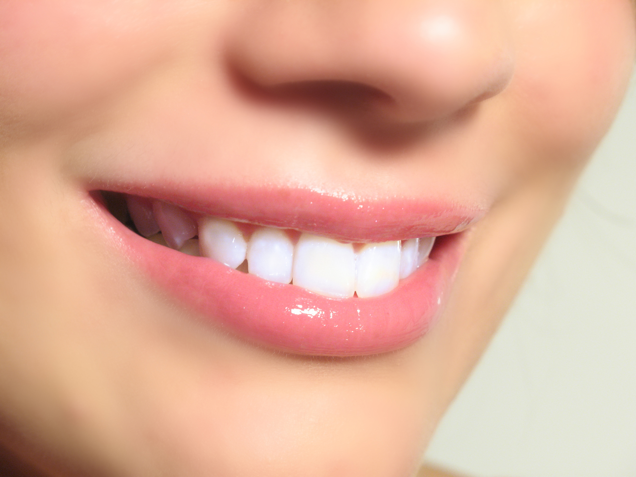 We are one of the experts of dental veneers here in Sydney.