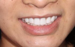 We create a beautiful smile just for you.