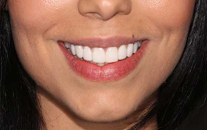 We are the best in teeth whitening here in Sydney.