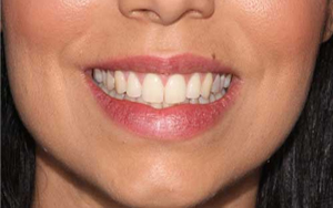 A case before the teeth whitening procedure.