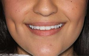 We are the best dentistry to correct your teeth.