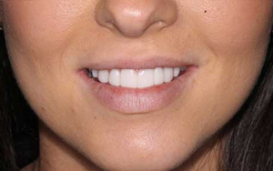 This perfect set of teeth is made possible with our high quality dental services.