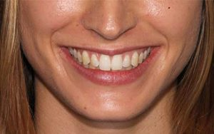 We make your teeth in a much better condition.