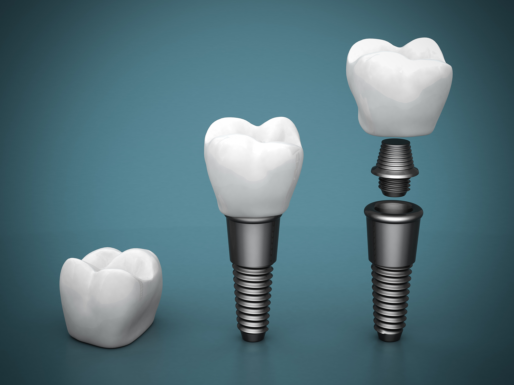 We are the best in dental implants here in Sydney.