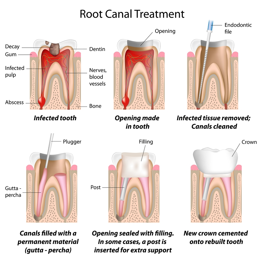 We are the best in root canal therapy here in Sydney.
