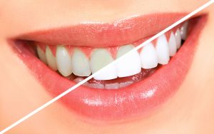 We are the best dentistry for teeth whitening.