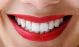 We are the experts when it comes to teeth whitening here in Sydney.