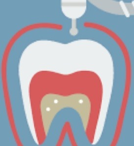 Root Canal Therapy Sydney