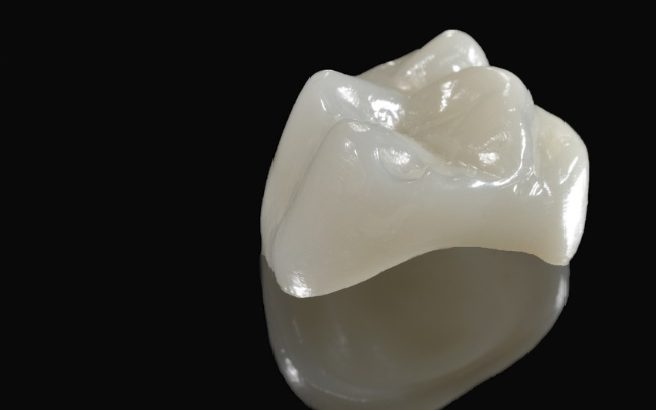 Best dental crown in Sydney