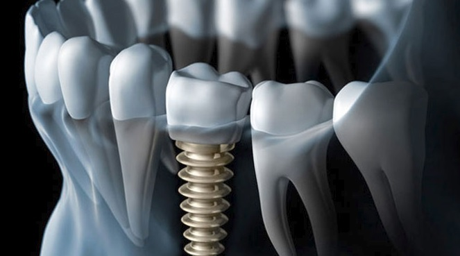 The best dental implants in Sydney.