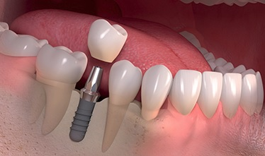We are the best dental implant here in Sydney.