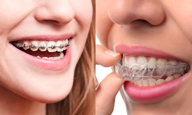 We have affordable braces cost here in our Sydney clinic.