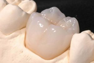 Cerec Crown available in our Sydney clinic.