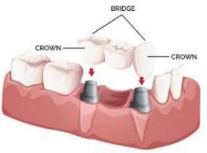 Dental Crowns and Bridges available here in our Sydney clinic.