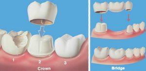 Dental Crowns and Bridges here in Sydney.