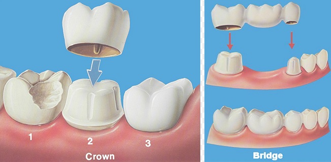 Dental Crowns and Bridges here in Sydney.