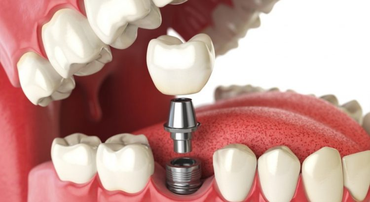 Dental Implant available at our clinic here in Sydney.