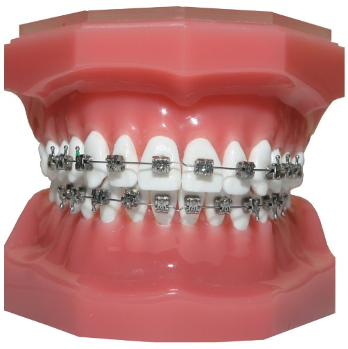 We provide orthodontic treatment here in Sydney.