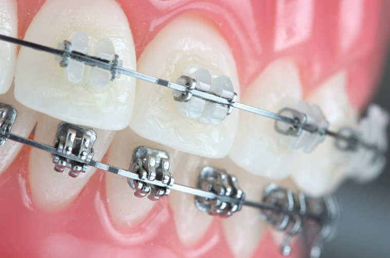 Orthodontics in Sydney
