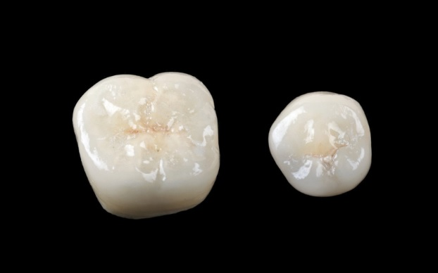 Porcelain Crowns in Sydney
