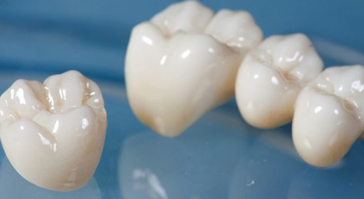 Porcelain Dental Crown in Sydney