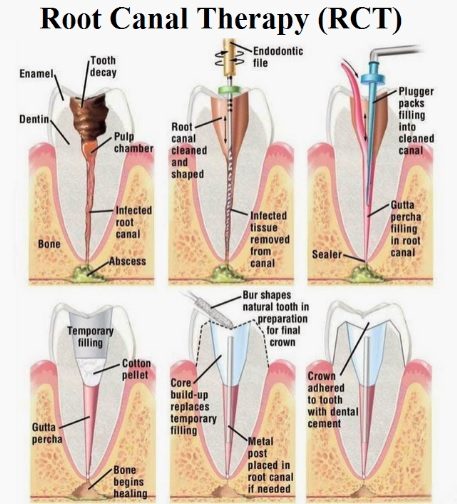 Root canal treatment in Sydney.