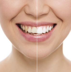 We provide teeth whitening here in our Sydney clinic.