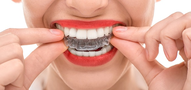 We are Invisalign Platinum Provider in Sydney