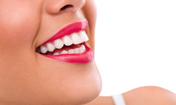 We offer affordable teeth whitening service here in our Sydney clinic.