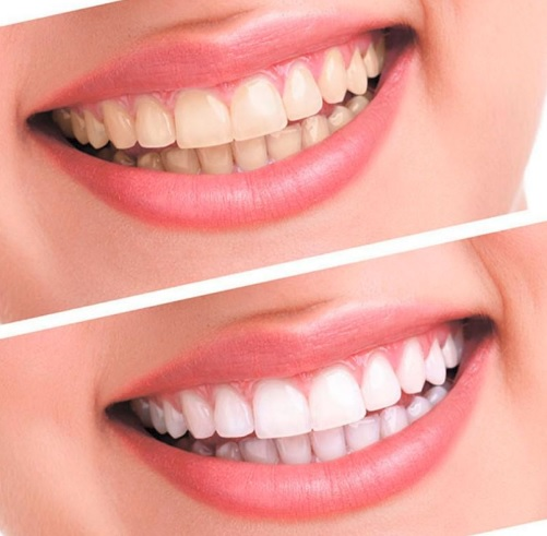 We have a special offer on teeth whitening here in our Sydney clinic.
