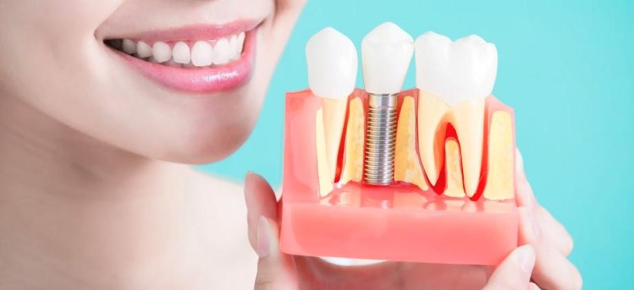 We offer affordable dental implants in Sydney
