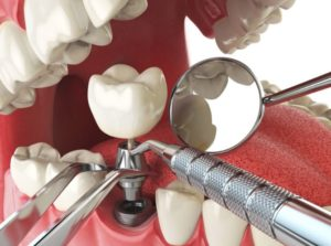 We have the best dental implant in Sydney