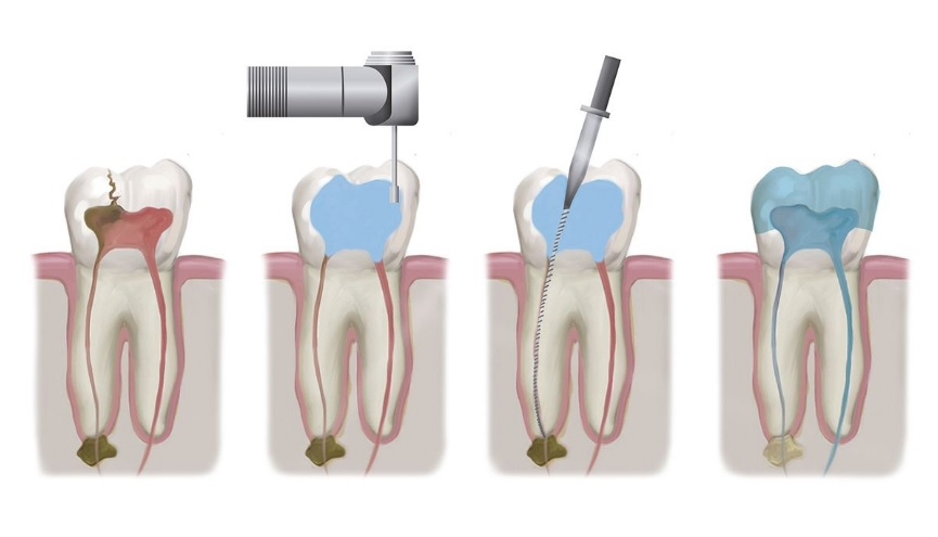 We offer affordable root canal therapy in Sydney.
