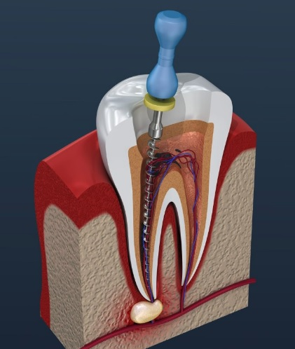 We have the best root canal therapy in Sydney.