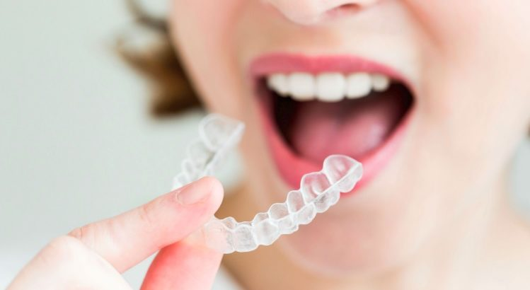 We are a platinum provider of Invisalign here in Sydney.
