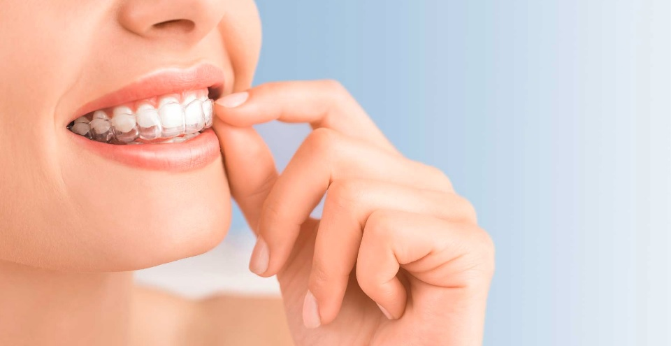 We are the best in providing Invisalign here in Sydney.