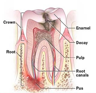 Root canal treatment cost in Sydney