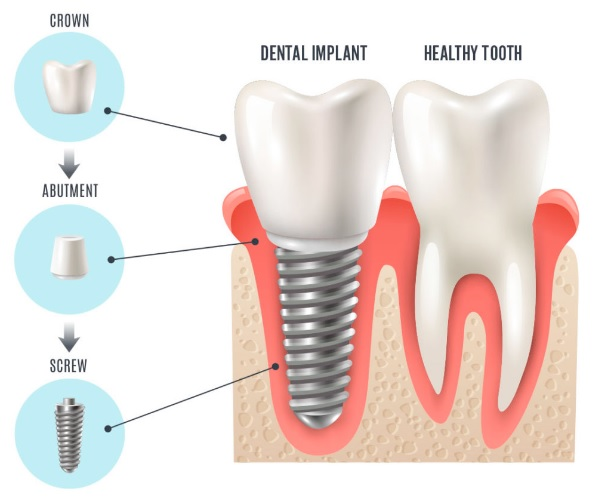 Teeth Implant in Sydney