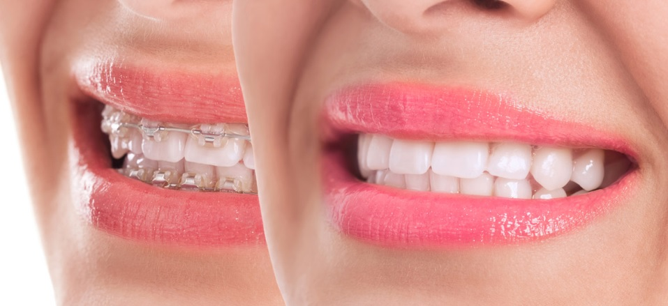 Orthodontics cost in Sydney