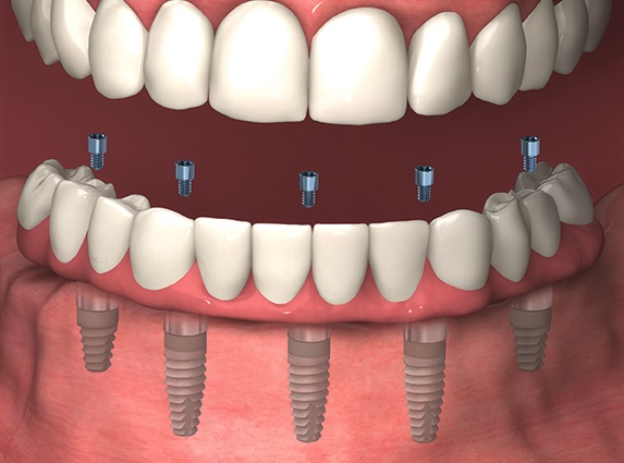 Full Dental Implants in Sydney