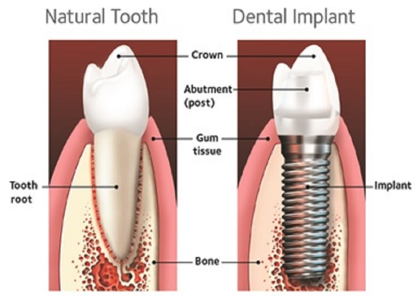 Tooth implant cost in Sydney