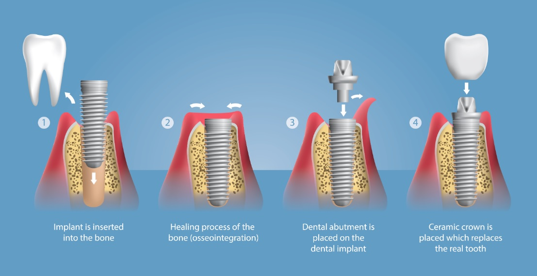 Tooth implant process in Sydney